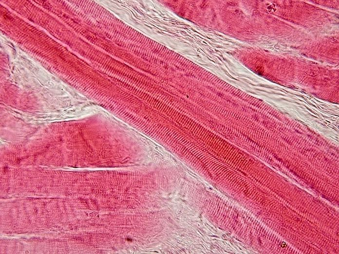 Skeletal_muscle_-_longitudinal_section